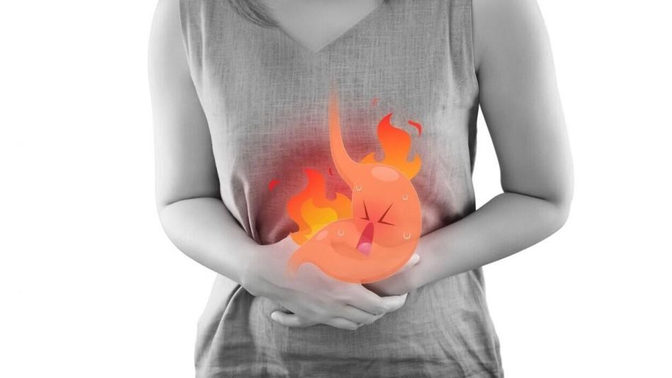 Acidez estomacal: Consejos para no sufrir este incómodo problema en Fiestas Patrias