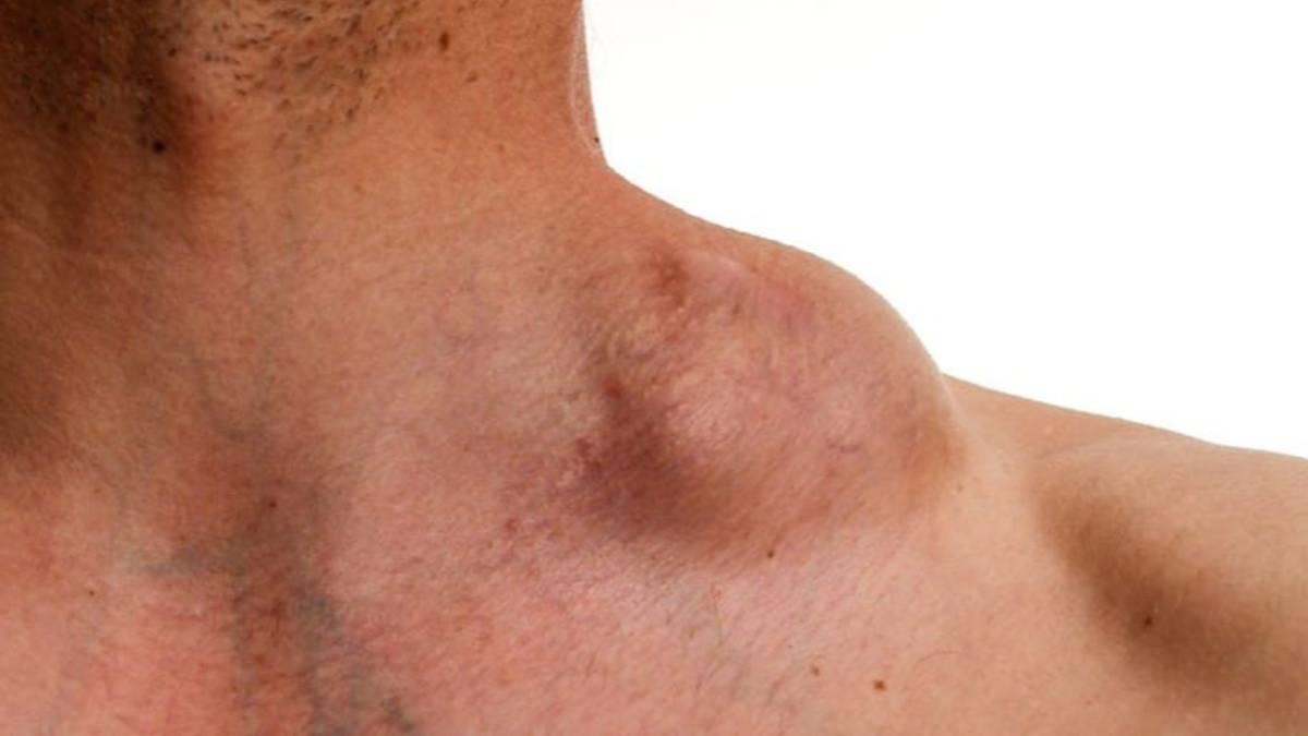 Linfomas: Estos son los síntomas y señales de enfermedad