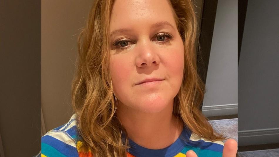 Endometriosis: Esta es la condición por la que extirparon el útero y el apéndice a la comediante Amy Schumer