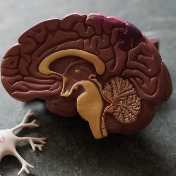 Mal de Alzheimer: Estas son las primeras señales con las que se manifiesta la enfermedad