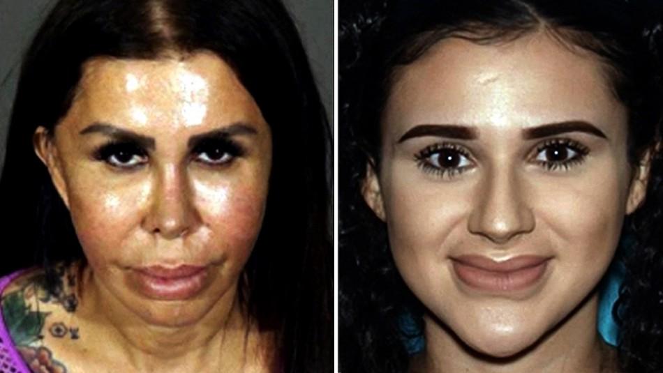 Madre e hija fingen ser doctoras y ahora son acusadas de asesinar a una mujer tras cirugía estética ilegal