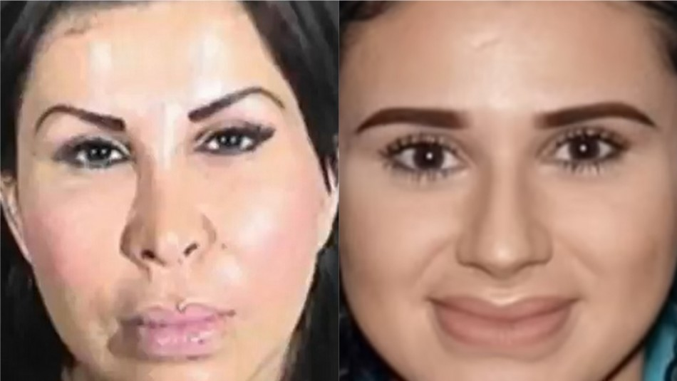 Madre e hija son acusadas de realizar cirugía estética ilegal: Paciente de 26 años murió a raíz del procedimiento