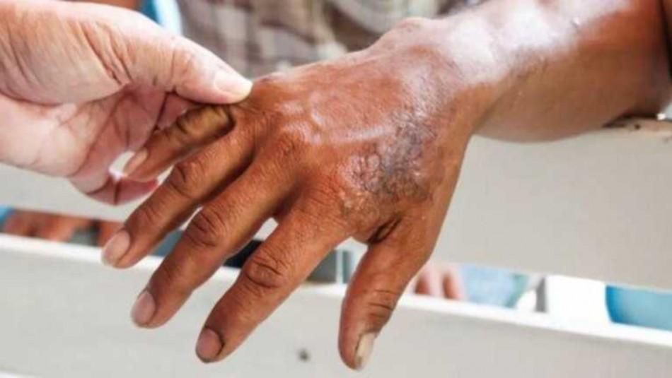 ¿Se cae la piel a pedazos? Tres mitos sobre la lepra que debes conocer
