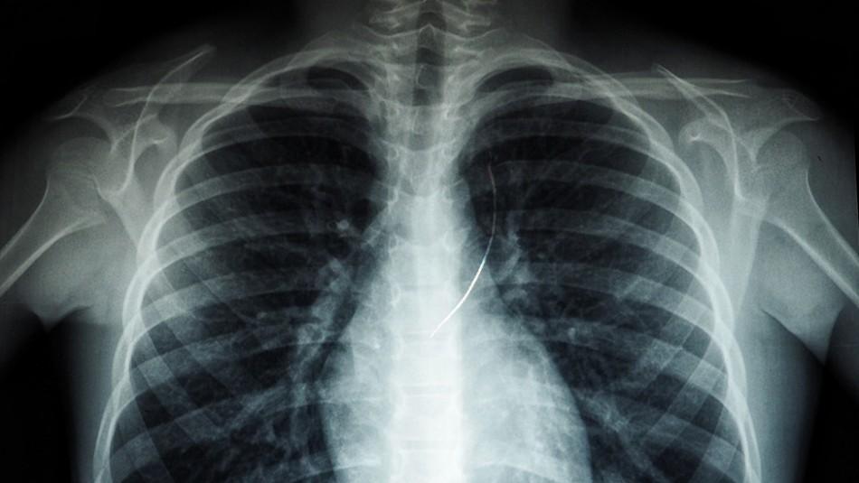 Hombre acude al médico por dolor en el pecho y le encuentran un trozo de cemento de 10 centímetros