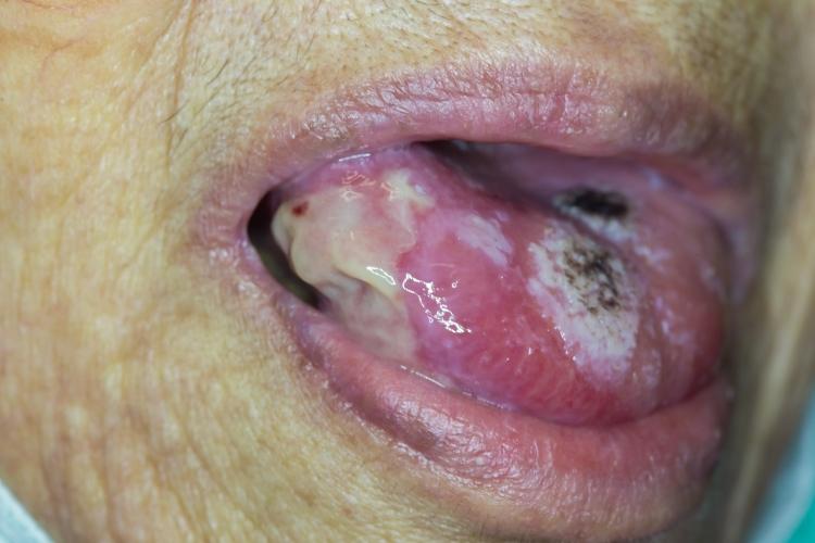 Parches de color blanco en la lengua de una persona con cáncer