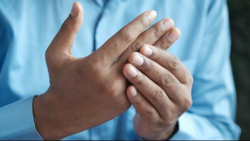 Artritis Reumatoide: Los síntomas y la importancia de un diagnóstico oportuno